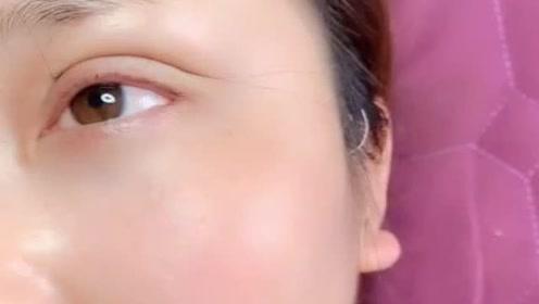 刚做的埋线双眼皮也太自然了,一点都没有红肿