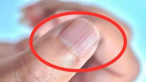 指甲为何突然长出奇怪的竖纹,是身体有什么暗示吗?