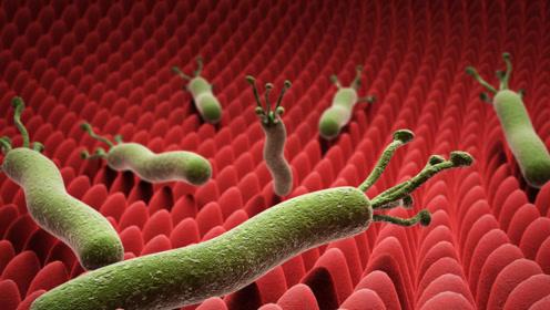 毛滴虫病是怎么传染的?提醒:2个传播途径,女人要留意
