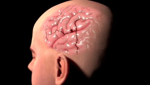 医生提醒:脑血管崩溃前有4个信号,别等半身不遂才留意