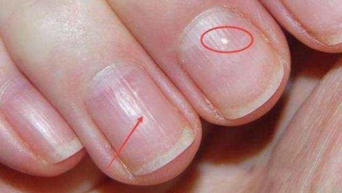 为什么有的人指甲上有竖纹,是身体在暗示什么?看完要注意了!