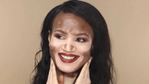 """非洲女孩患""""白癜风"""",遭人戏称""""双拼巧克力"""",最终打脸所有人!"""