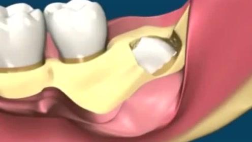 复杂智齿是如何拔除的?看完后我都不敢拔牙了