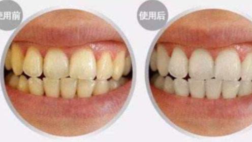 牙齿发黄口又臭!教你一个方法,告别牙黄,拥有清新口气