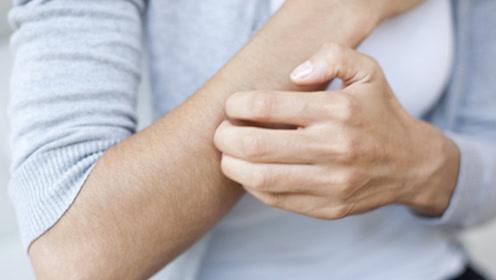 荨麻疹发作瘙痒不适,两个穴位活血通络止痒