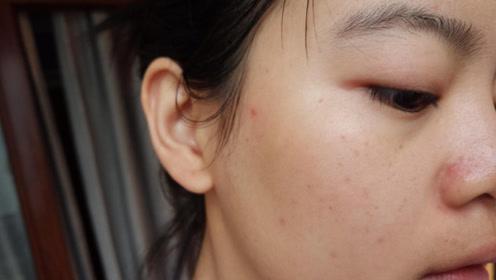总是长粉刺?这里有5大保养诀窍,告别粉刺黑头皮肤嫩滑有光泽