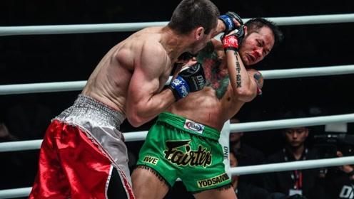 昨天,泰拳第一人雅桑克莱被重拳KO,赛后被送进医院!