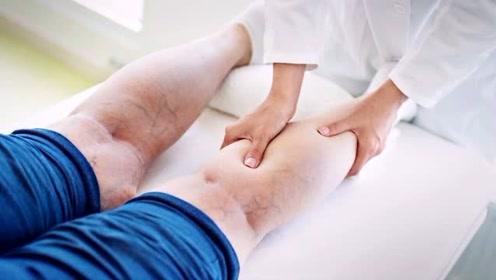 女子泡脚后进了两次ICU!医生提醒:泡脚虽好,但3类人要慎泡