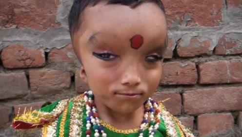"""印度男童天生身体缺陷,长的神似""""象头神"""",被当地村民当神膜拜!"""