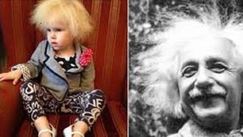 世界最奇怪的一种病,爱因斯坦只是其一,患者一梳头就炸毛!