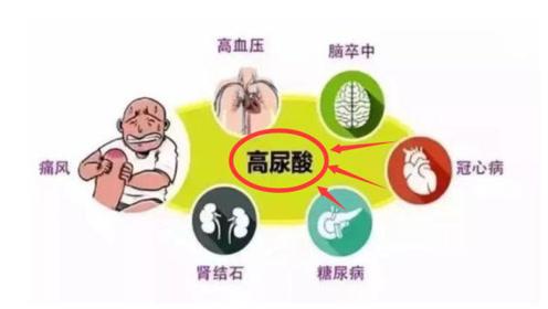 """尿酸高的人,身体若出现这4种""""怪象"""",可能是肾衰竭找上门了"""