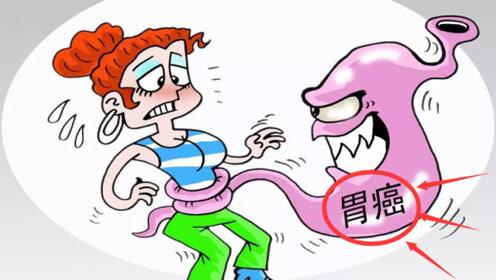 """胃癌与这4个""""恶习""""密不可分,再不注意,当心""""癌细胞""""找上门"""