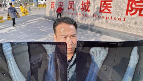 13岁男孩手腕骨折去凤城医院被误诊,院方竟然说赔偿3000元否则免谈