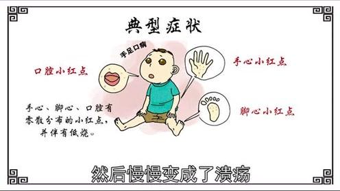 手足口病最容易与这些病混在一起迷惑家长们