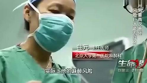 9个月男婴2次开颅生死劫难,无辜纯真的冲医生甜甜一笑