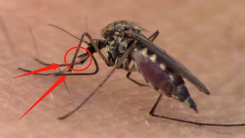 蚊子吸血的时候,为什么不能直接拍死?看看医生怎么说
