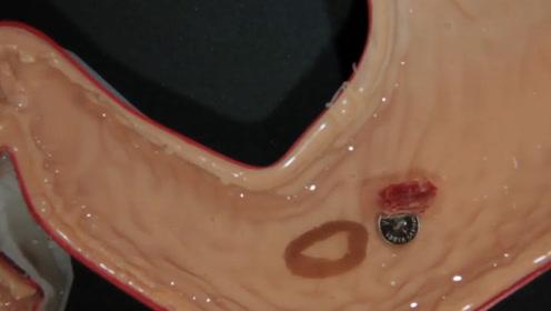 美国发明微型机器人,随胶囊进入肠道,清理体内异物,太神奇了!