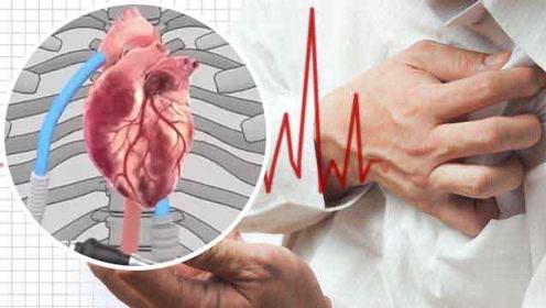 重量不到180克,我国研制全磁悬浮人工心脏为心衰患者带来希望