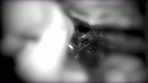 冠切右额开颅巨大无功能型垂体腺瘤切除术