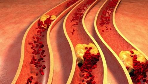 忠言:高血压患者,4种食物多吃点,平稳降血压,身体更健康