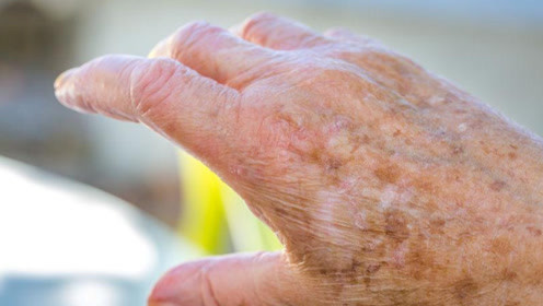为什么有的人老了长满了老年斑,有人却很少?医生:无外乎3点