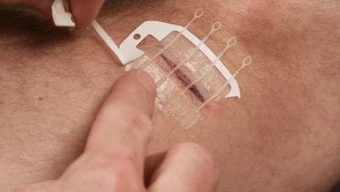 """老外发明""""拉链创可贴"""",伤口不需缝针,只需轻轻一拉即可!"""
