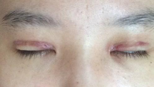 割了双眼皮的人在五年过后,他们都怎么样了呢?你有勇气去割吗?