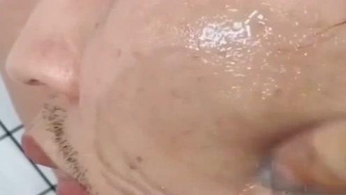 给老公做个皮肤清洁,过程真是太脏了吧,让我难以接受!