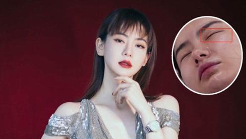 """戚薇真性情不展示""""假素颜"""",综艺节目中连双眼皮的疤痕也不遮挡"""