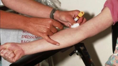 老人换血就能返老还童?专家用小白鼠实验,结果令人恐慌!