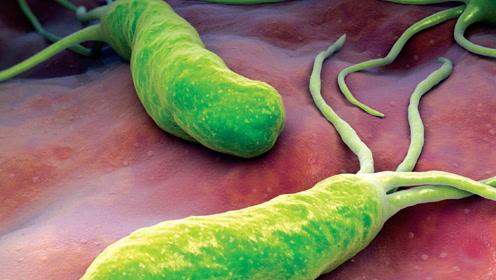幽门螺杆菌是胃癌的罪魁祸首!1个方法便可检测出自己是否感染