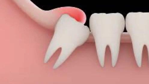 有人20岁长智齿、有人到40岁也不长,多少岁拔智齿算正常呢?