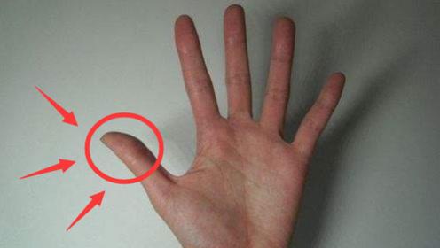 """肝癌早期不痛不痒,一旦手指出现""""3现象"""",说明体内有癌细胞了"""