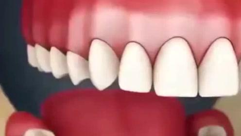 牙齿需要清洗,如果长期不洗牙会怎么样呢
