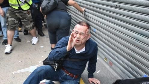 日本一游客路过拍照被误认为内地人 遭香港暴袭击倒地头受伤流血