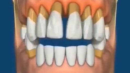牙齿未及时补的后果,太可怕了