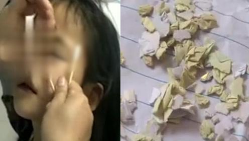 怒!女童眼睛被男同学塞纸片 母亲:视力严重下降,残留纸片未可知