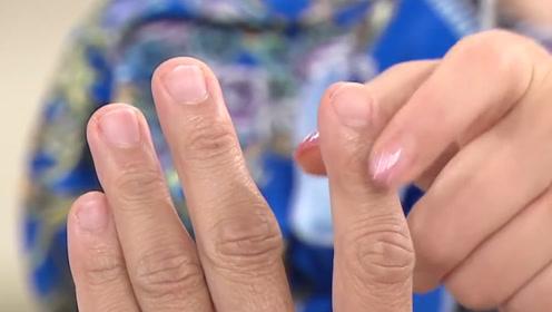 """手指甲满是""""竖纹"""",竟是这3种大病的征兆,医生:要及时就医!"""