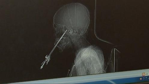 11岁小学生持玩具剑玩耍突发意外,刺穿脸颊深达11厘米