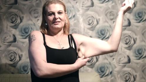 300斤女子身患重病,怒瘦150斤后,看见肚子上的肉连想死的心都有!