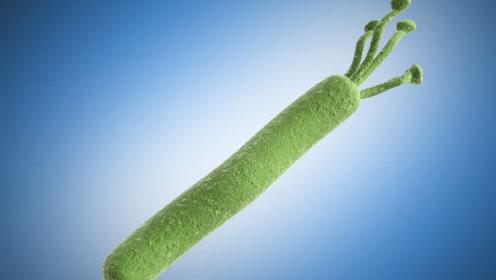 """幽门螺杆菌藏在胃里的""""一级致癌物"""",专家教你:如何避免感染?"""