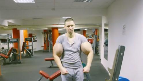 """俄罗斯网红为了增大肌肉,疯狂注射""""油脂"""",结果连胳膊都被一刀切!"""