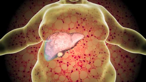 如何通达肝胆?1个穴位通肝胆疾病全解决