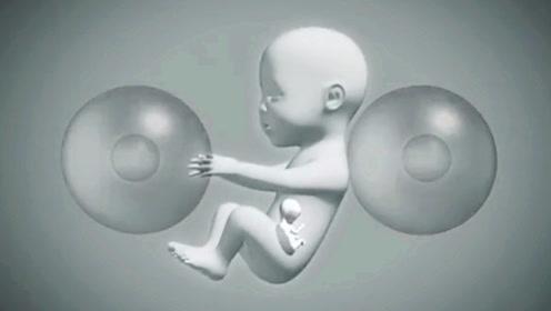 """女子生下一个""""怀孕""""的婴儿,出生仅一天就被紧急剖腹产"""