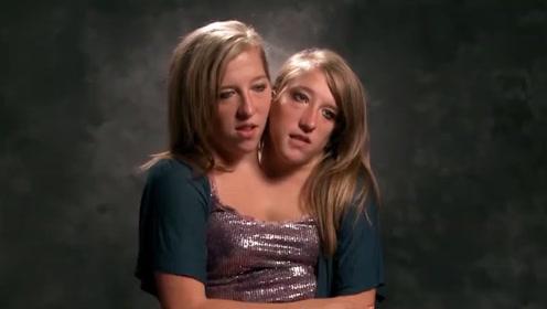 不可思议!29岁美国连体双胞胎姐妹共用一个身体,渴望结婚生子