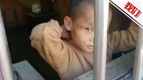 云南9岁男孩无玩伴疯狂自残3年 医院:孤独症和精神发育迟缓