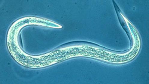 几条线虫的基因实验,昭示人类也许真的能长生不老