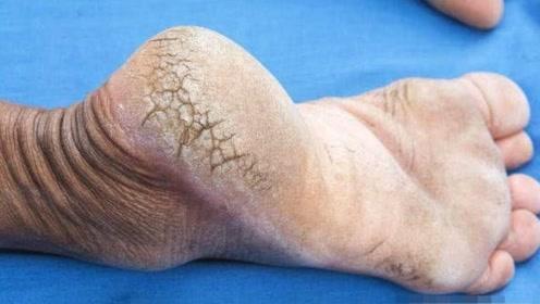 脚后跟干裂起皮,暗示着什么疾病,要提高警惕了