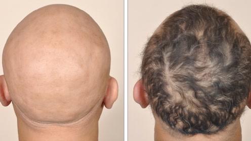 脱发是困扰很多人的问题,那么动物也会遇到脱发的问题吗?