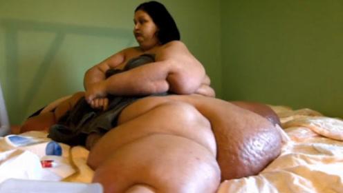 体重980斤被丈夫抛弃,曾压死侄子,减肥800斤后美呆众人!